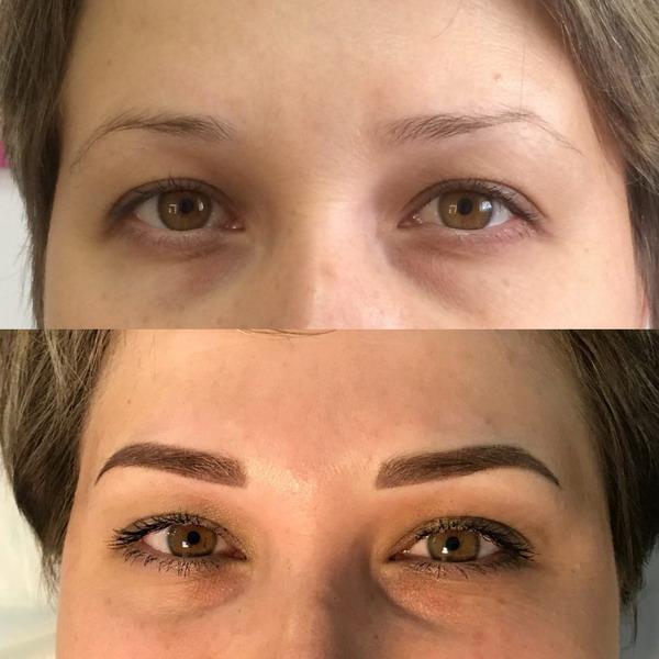 Пример фото до и после татуажа