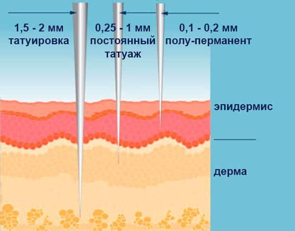 Глубина введения пигмента при разных косметических процедурах